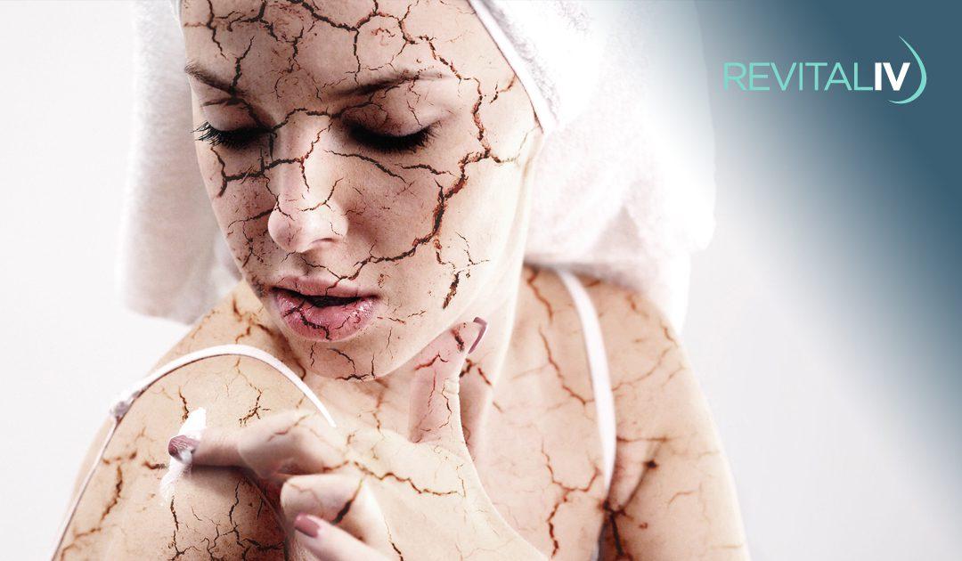 hormones-affect-your-skin